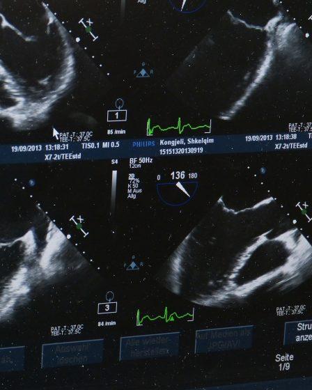 Ultraschalluntersuchungen